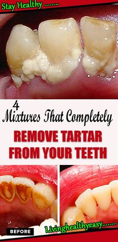 Remedies For Whiter Teeth 4 Mixtures That Completely Remove Tartar From Your Teeth Teeth Health, Healthy Teeth, Dental Health, Oral Health, Health Care, Health Tips, Health And Wellbeing, Health And Nutrition, Teeth Tartar Removal