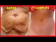 After losing weight in the abdomen the first consequence is the emergence and formation of the so-called saggy skin a mass of fat and loose skin with fatty texture. In this article learn how to eliminate sagging skin cleverly. Aside from cosmetic surge Losing Weight Tips, Weight Loss Tips, Fast Weight Loss, How To Lose Weight Fast, Reduce Weight, Fat Fast, Flabby Stomach, Tonifier Son Corps, Jessica Smith