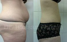 Vaser Lipo before & after results  • London based clinic  • Experienced cosmetic surgeon   #drhassannurein #harleystreet #cosmeticsurgeon #cosmeticsurgery #harleystreetdoctor #plasticsurgeon #DrNurein #vaserliposuction #vaserlipo #liposuction #vaserliposuctionlondon #vaserliposuctionresults #vaserliporesults