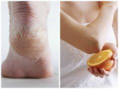 Cómo quitar los codos y pies resecos de la piel | Cuidar de tu belleza es facilisimo.com
