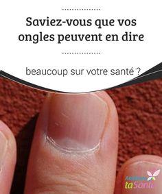 Saviez-vous que vos #ongles peuvent en dire beaucoup sur votre #santé ?   La plupart des personnes s'intéressent au soin des ongles, afin qu'ils soient #forts, propres et sans #infections.