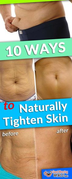 10 Ways to Naturally Tighten Skin After Weight Loss !!!!