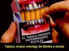 Tabaco, el peor enemigo de dientes y encías   Directorio Odontológico