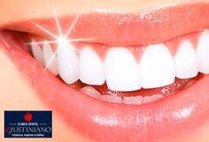¡Luce dientes blancos, sonrisa perfecta! Bs. 109 en vez de Bs. 350 por blanqueamiento de 20 minutos + consulta + flúor en Clínica Dental Justiniano