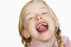 ¿Qué sabes del frenillo lingual corto?