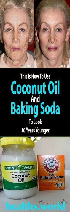 Coconut Oil and Baking Soda Face Mask to Look 10 Years Younger Baking With Coconut Oil, Coconut Oil For Skin, Coconut Oil Facial, Natural Treatments, Skin Treatments, Natural Remedies, Baking Soda Face, Health World, Benefits Of Coconut Oil
