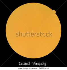 Medical photo retinopathy of Cataract (eye screen) (It seems that the picture is not clear or out focus because corneal clouding)