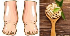 Picnogenolo – Il migliore rimedio naturale per gambe gonfie, capillari fragili e ritenzione idrica
