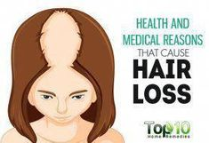 Everyone loses hair—a little bit falls out during your shower while washing your hair as well as during brushing and styling. This is normal. On average, people lose 50 to 100 hairs a day as old strands of hair get replaced with new ones. But when hair lo Top 10 Home Remedies, Home Remedies For Hair, Hair Loss Remedies, Natural Remedies, Natural Treatments, Hair Treatments, Hair Loss Causes, Prevent Hair Loss, Hair Loss Reasons
