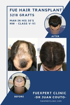 Before After 3218 FUE Grafts - FUE Hair Transplant - Dr Couto - FUExpert Clinic - Madrid, Spain. Hair loss solution for an alopecia Norwood V-VI. Hairline & mid-scalp restoration .