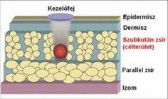 A kavitáció katása a zsírsejtekre korlátozódik