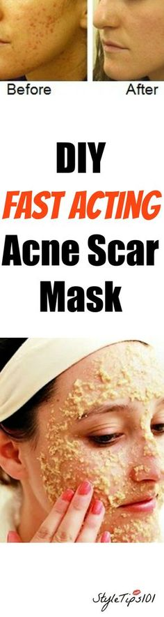 Acne scars are one of the most annoying and hard to treat skin ailments out there. Not only can acne scars be hard to get rid of, but they're also a constant reminder of all those years you suffered from acne. Fortunately, there ARE many ways to get rid of acne scars, and this DIY… Read More »
