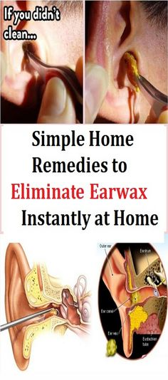 How To Eliminate Earwax At Home