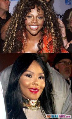 Lil Kim-0 Plastic Surgery-1