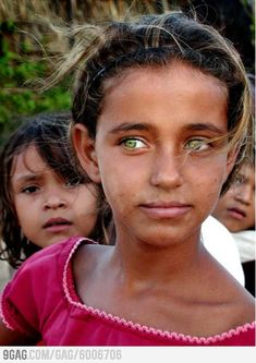 Beautiful, bright, and almost electric green eyes on this young girl. Very rare, and I haven't ever seen this before.