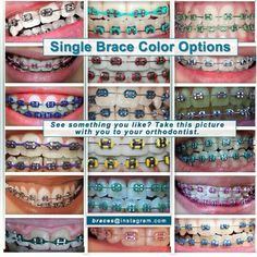 Single color braces Dental Braces, Teeth Braces, Dental Care, Braces And Glasses, Braces Problems, Braces Retainer, Braces Bands, Cute Braces Colors, Misaligned Teeth