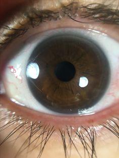 True Winter eye