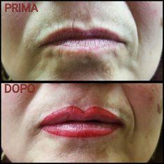 Riempimento labbra con contorno ugual al colore interno per ingrandire e nascondere le rughe