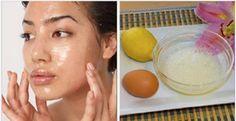 Um poderoso tratamento caseiro para eliminar do seu rosto marcas e manchas de melasma.