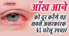 आँख आने को दूर करेंगे यह सबसे असरकारक 41 घरेलू उपचार | Pinkeye Home Treatment and Remedies ++++  आसाराम बापूजी ,आसाराम बापू , आशाराम बापू , सत्संग   #asharamjibapu ,#bapu, #bapuji ,#asaram, #ashram, #asaramji, #sant, #asharamji ,#asharam ,#mybapuji