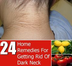 24 Home Remedies For Getting Rid Of Dark Neck