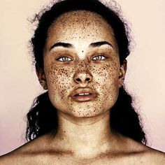 Vitiligo Homeopathy Treatment-Lip Vitiligo Treatment In Hyderabad Pretty People, Beautiful People, Vitiligo Treatment, Skin Grafting, Freckle Face, Interesting Faces, Drawing People, Headshot Photography, Violent Femmes