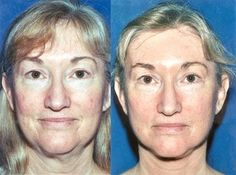Obtaining The Flawless Chinese Facelift: Do Facial Massaging Exercise Treatments Work?