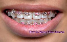 How to Make Fake Braces Download - How to Make Fake Braces 1.0 ...