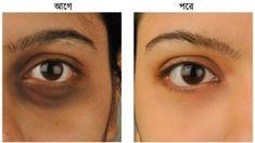 কল দগ দর করর সহজ উপয় - How to remove dark circles permanently - YouTube   Bangla Health Diggo   Pinterest   Bangla Health Diggo   Pinterest   Pinte   Pinterest