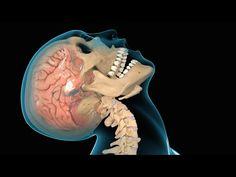 Concussion / Traumatic Brain Injury (TBI) - YouTube