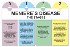 The Stages of Meniere's, unfortunately, I'm already in the middle stage and since I've had Meniere's since I was 14, I'll most likely lose my hearing in both ears :(