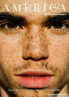 # wattpad Cameron Boyce, Freckle Face, Disney Channel Stars, I Miss U, Now And Forever, Dove Cameron, Rest In Peace, Baby Daddy, Freckles