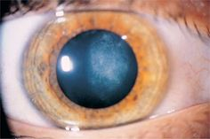 A cataract is a clouding of the lens in the eye. Most cataracts are seen as a normal aging change in the eye. Find out how we can help. Eye Center, Surgery, Australia, Eyes, Human Eye, Australia Beach