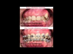 Aesthetic Teeth Makeover by Drg. Linus Boekitwetan