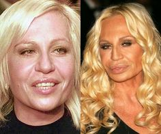 Constellation Versace's plastic surgery debacles.