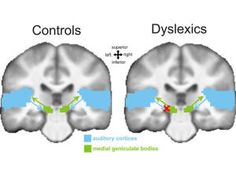 Dyslexia caused by faulty signal processing in brain; Finding  by at the Max Planck Institute for Human Cognitive and Brain Sciences in Leipzig offers clues to potential treatments. August 2012