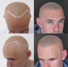 What is Skalp™ Micropigmentation? #SkalpUK #HairLoss
