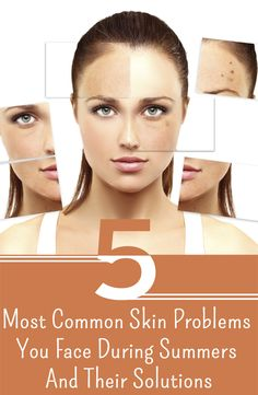 5 Most Common Skin Problems You Face During Summers And Their Solutions