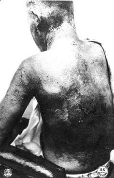 Mustard Gas Victim - WWI    http://www.worldwar1.com/tripwire/smtw0309.htm