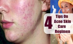 4 Tips On Acne Skin Care Regimen