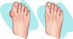 Los juanetes son depósitos de sal (urato de sodio). Su formación se desencadena por la gripe, amigdalitis, gota, metabolismo deficiente, mala nutrición, inflamación aguda de las articulaciones y el uso de zapatos incómodos.rnrn[ad]rnLos juanetes en los pies o hallux vagus es una