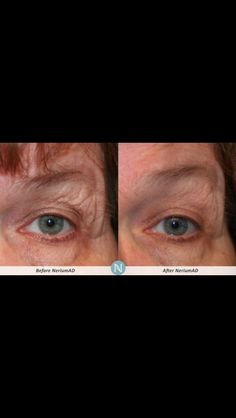 More great results using NeriumAD...