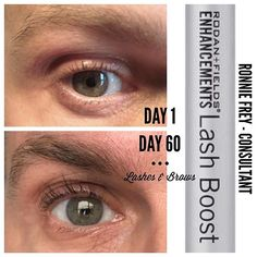 If you're a GUY or a GIRL with short, thinning eyelashes (like Ronnie) and want to change that, this product is the bomb! 💣. Look what it did for him in just a few weeks! 📲📲📲HURRY AND LETS CHAT NOW📱📲 . https://andreacomuzziservetto.myrandf.com/pages/lash-boost