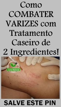 Eczema varicoasă: principii de tratament - Cauze