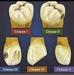 Afraid Dental Implants Before And After Las Vegas Dental Assistant Study, Dental Hygiene Student, Dental Hygienist, Dental World, Dental Life, Teeth Health, Dental Health, Oral Health, Dental Charting
