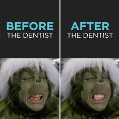 YOU'RE A FOUL ONE, Mr. Grinch. But now you've got a great smile! greatlakesdental.ca