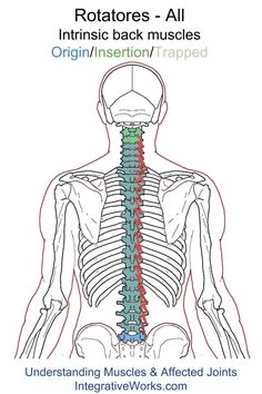 Understanding Trigger Points - sharp pain between the shoulder blades