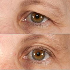 Health Care, Health Fitness, Face, Beauty, Style, Remedies, Dementia, Natural Treatments, Dark Eye Circles