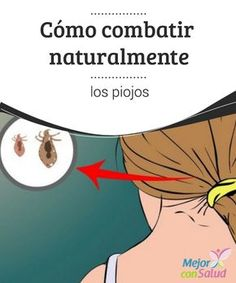 Cómo combatir naturalmente los #piojos  Existen muchas formas para combatir naturalmente los piojos y conseguir erradicarlos. Lo mejor es que se pueden aplicar tantas veces como se desee sin riesgo de #irritaciones #RemediosNaturales