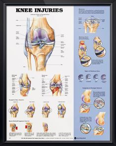 179 Best Knee surgery images in 2017 | Knee surgery, Surgery